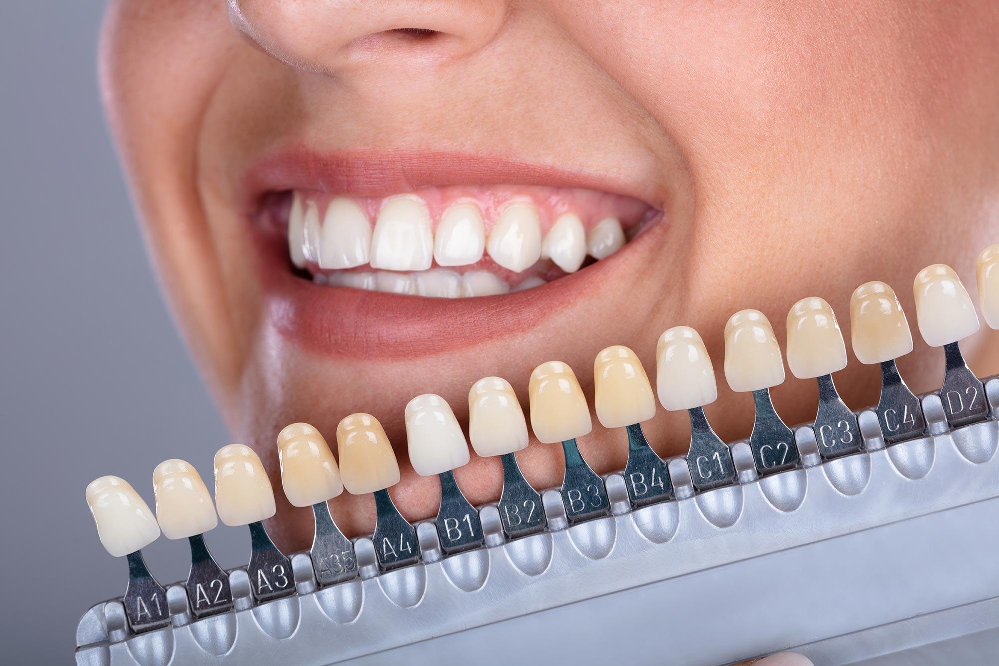 tanden-bleken-new